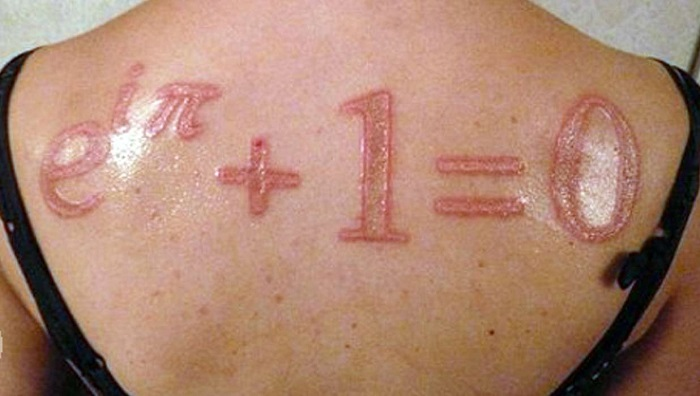 Iodine tattoo removal by themedicalbag